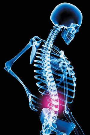 back-pain-mital-prolapse