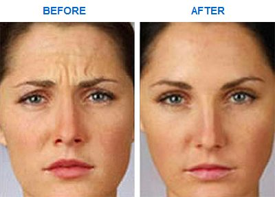 frowns-cosmetic_botox